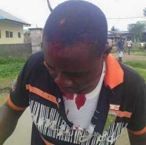 Oh No! APC Celebration in Rivers Turns Bloody as Bullets Hit 4 People (Photos)